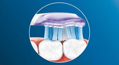 Philips Sonicare Premium Gum Care HX9054/17 technologie čištění