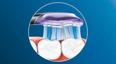 Philips Sonicare Premium Gum Care HX9054/33 technologie čištění