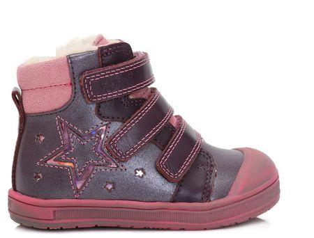 Ponte 20 dievčenské kožené topánky s hviezdou22 vínová